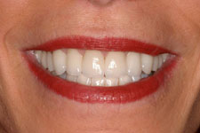 Female Veneer - After