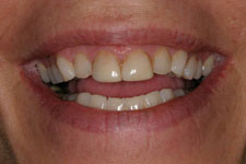 Female Veneer - Before