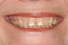 Veneers & Crowns - Before
